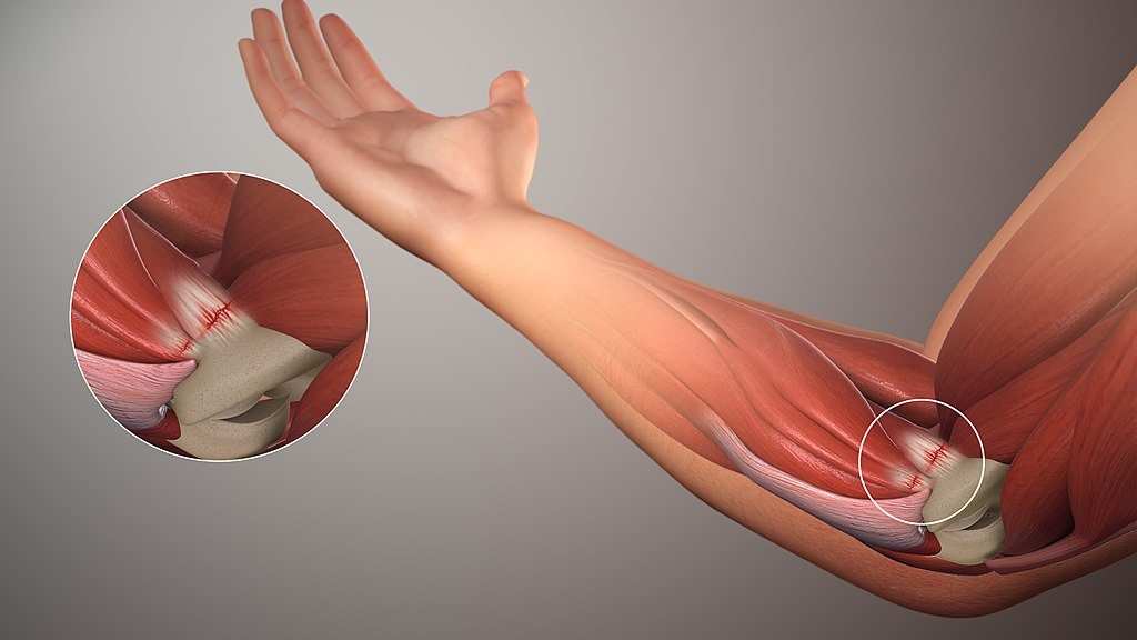 Golfers Elbow Diagram and Treatment