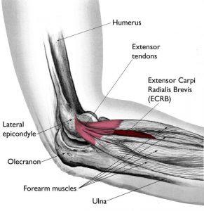 Tennis Elbow Treatment and Diagram